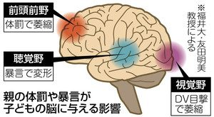 体罰・暴言で脳変形